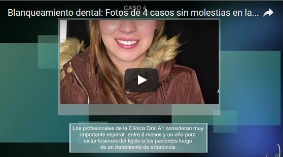Fotos de Casos de Blanqueamiento Dental en Bogotá