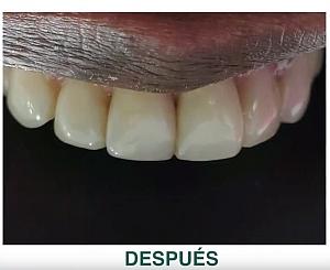 Carillas Dentales en Bogotá: Ventajas y Desventajas